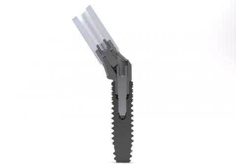 Abbildung: Schnittbild - Implantat und Aufbau